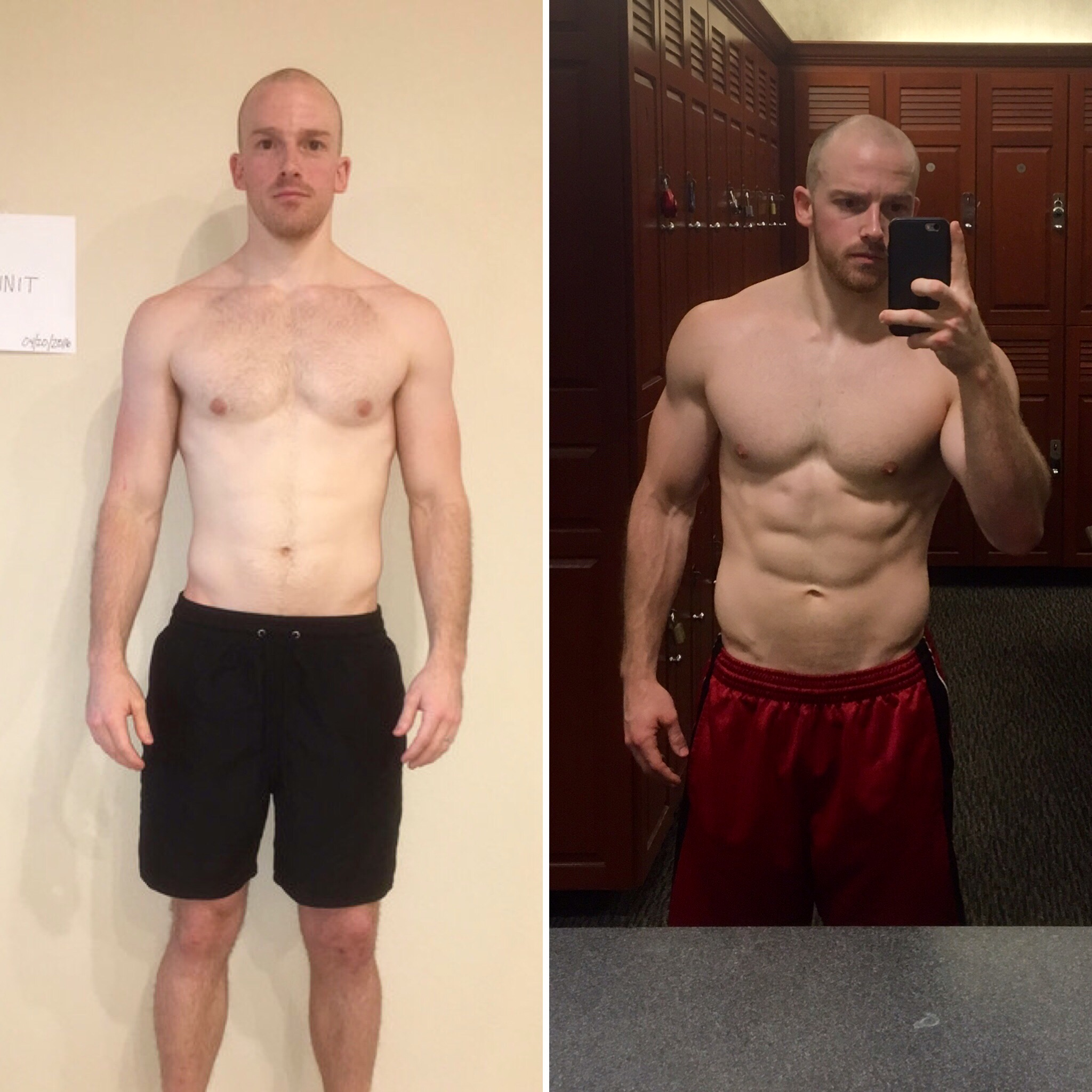 My 8-Week Transformation:Post Surgery (04/20/2016) vs. Now (06/16/2016)