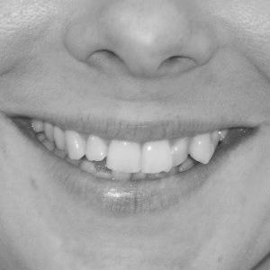 crooked-teeth.jpg