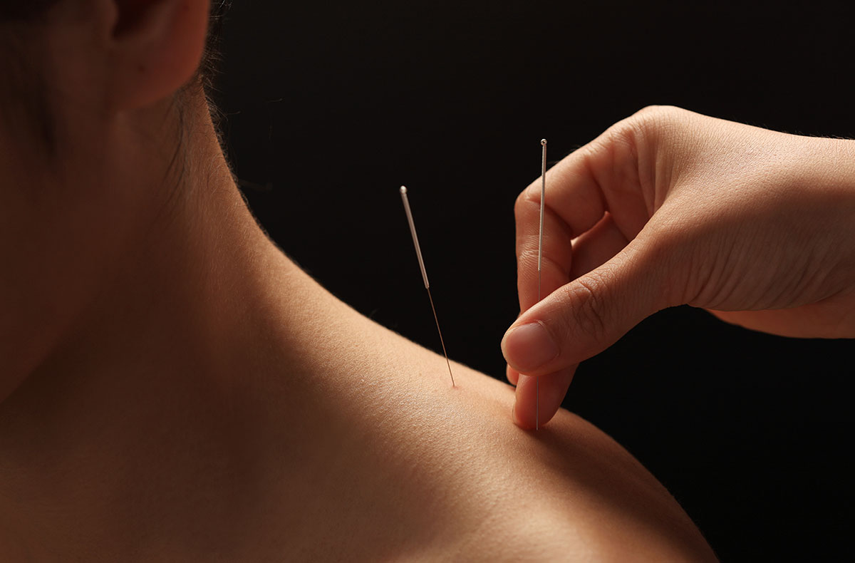 chiropractic acupuncture.jpg