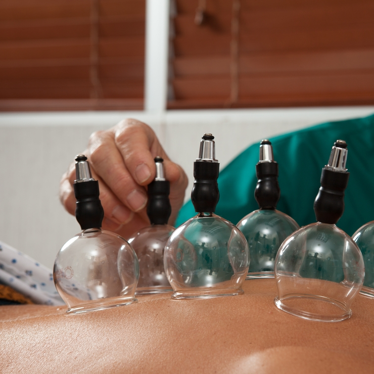 miami beach acupuncture cupping.jpg