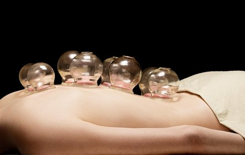 NSEV Acupuncture & Cupping - Non-Somatic Extraordinary Vessels Acupuncture is a modern adaptation of an ancient Chinese medicine and acupuncture healing system. Through utilization of this method, the patient's condition can be addressed from an inside out philosophy to reharmonizes the body.