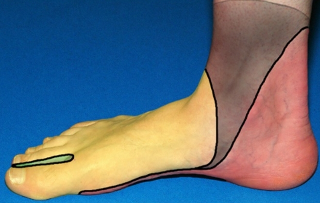 NERVE BLOCKS OF THE FOOT AND ANKLE