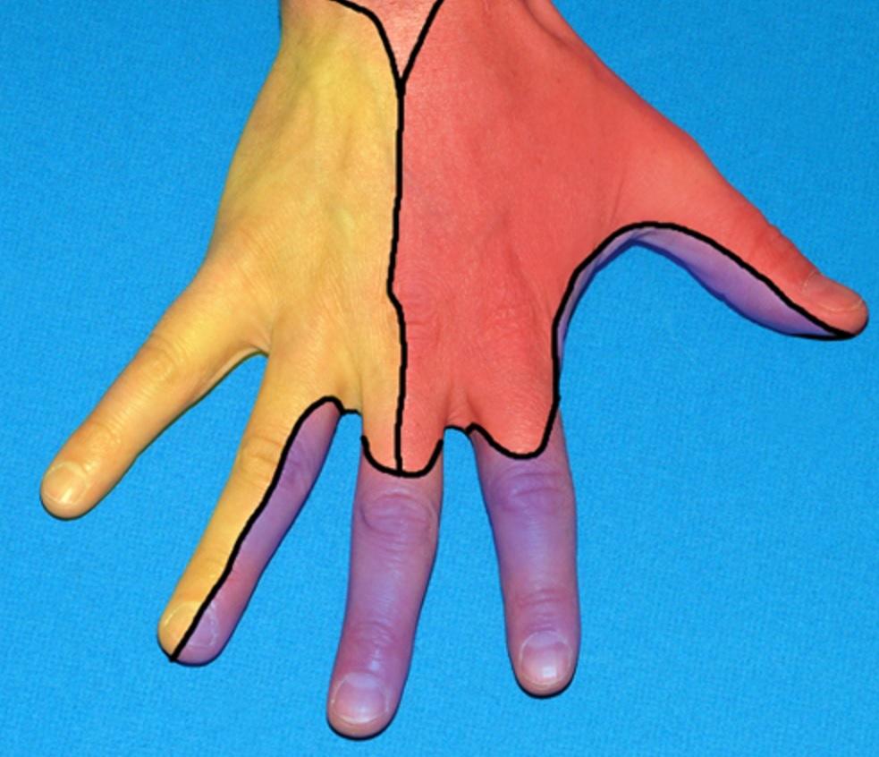 NERVE BLOCKS OF THE HAND AND WRIST