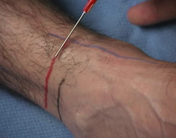 black = superior portion of lateral malleolus; blue = tibialis anterior tendon; red = approximate injection point for superficial peroneal nerve
