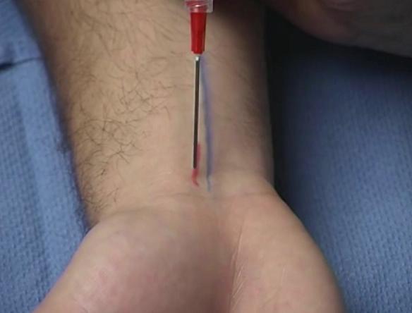 BLUE = Palmaris longus tendon; red = median nerve