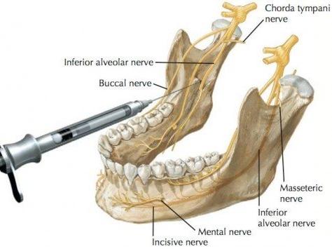 inferior alveolar nerve anatomy.jpg