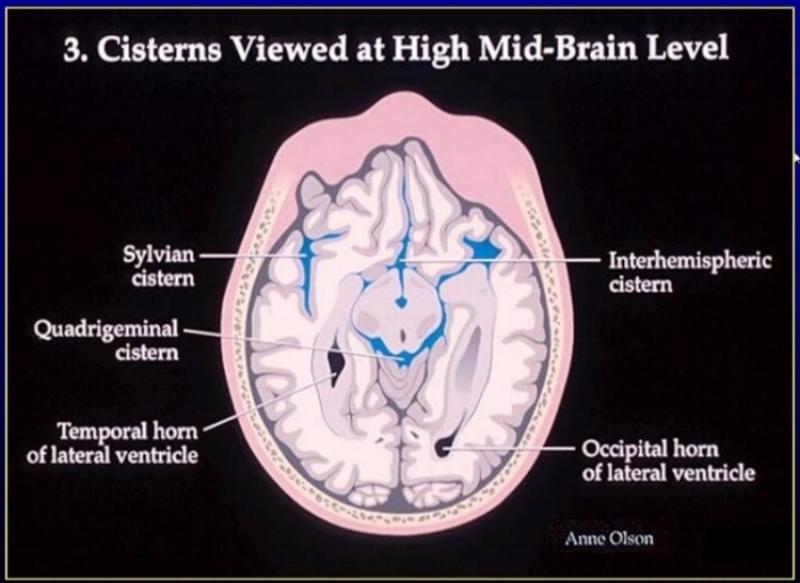 cisterns at high mid brain level.jpg