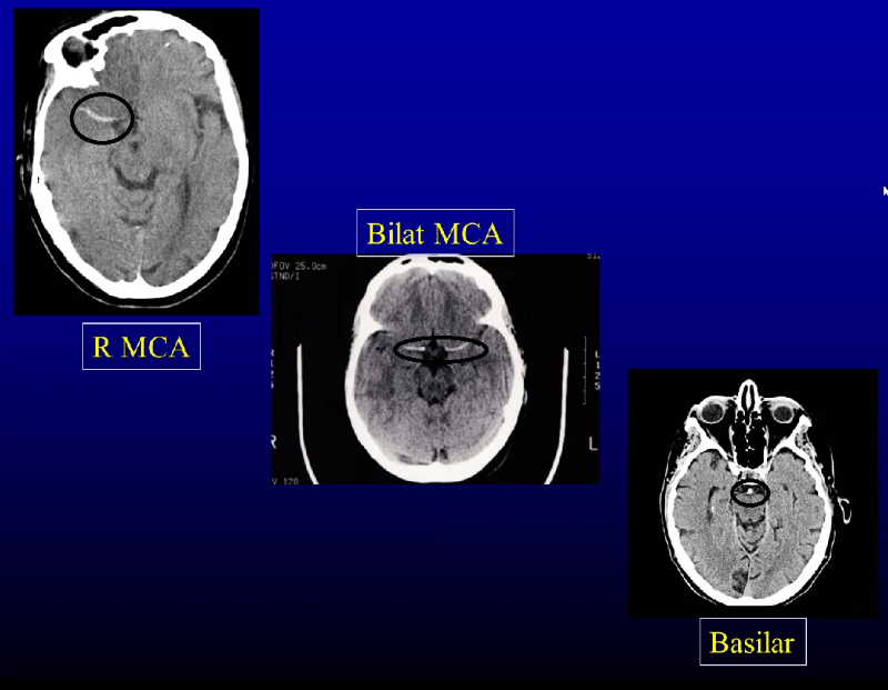 HYPER DENSE sign/clot (circles) can OCCASIONALLY be seen in large vessel occlusion
