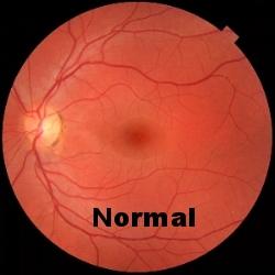 https://fr.wikipedia.org/wiki/Fichier:Fundus_photograph_of_normal_left_eye.jpg
