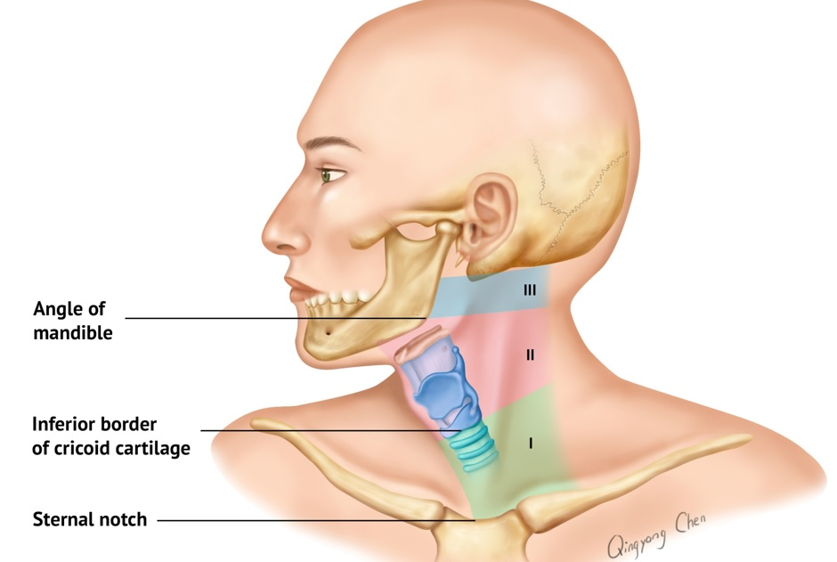 http://m.trauma.utoronto.ca/protocols/penetrating_neck_trauma.html