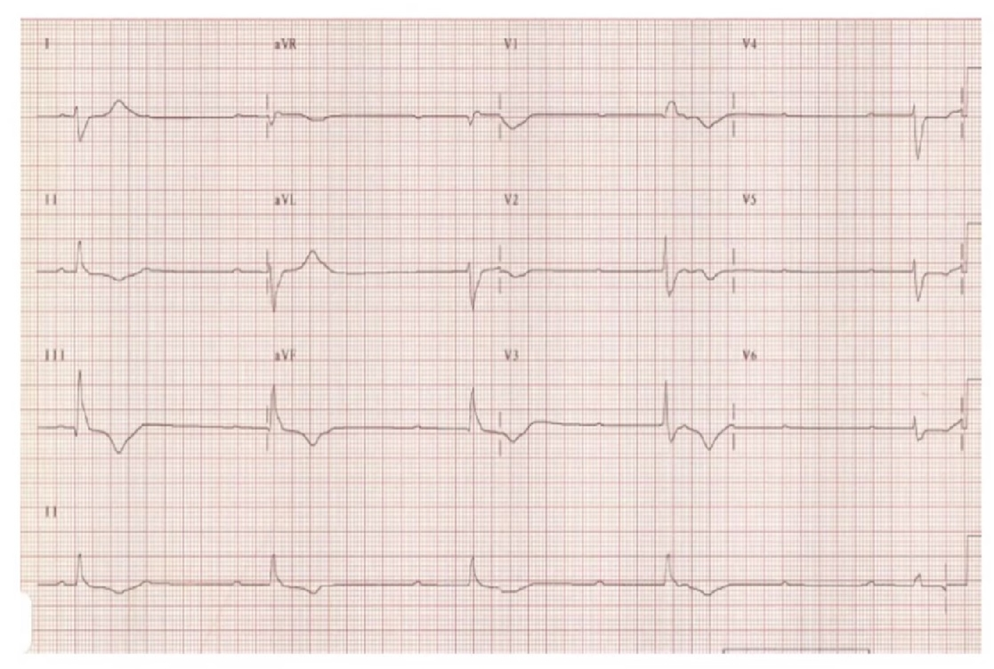This Patient with a history of Complete heart block and an AICD has no pacer spikes on his ECG