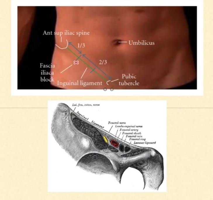 FICB anatomy.jpg