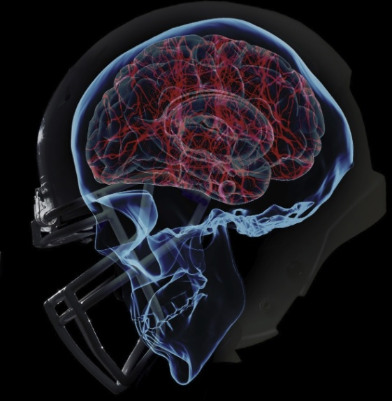https://blairchiropractic.com/post-concussion-syndrome-actually-neck-injury/