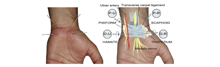 Carpal Tunnel Syndrome Relief in Wake Forest, NC
