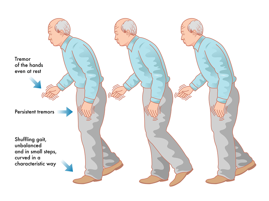 bigstock-Parkinson-s-disease-64550221.jpg