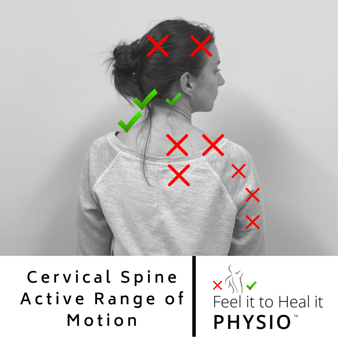 Cervical Spine Rotation Range of Motion - Normal is up to 90 degrees both directions
