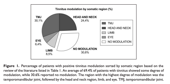 Ralli et al 2017 - Somatosensory tinnitus: Current evidence and future perspectives