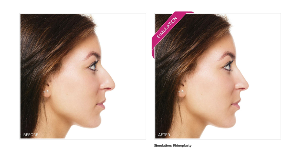 Sample of New Look Now's predictive imaging technology used for a Rhinoplasty simulation.