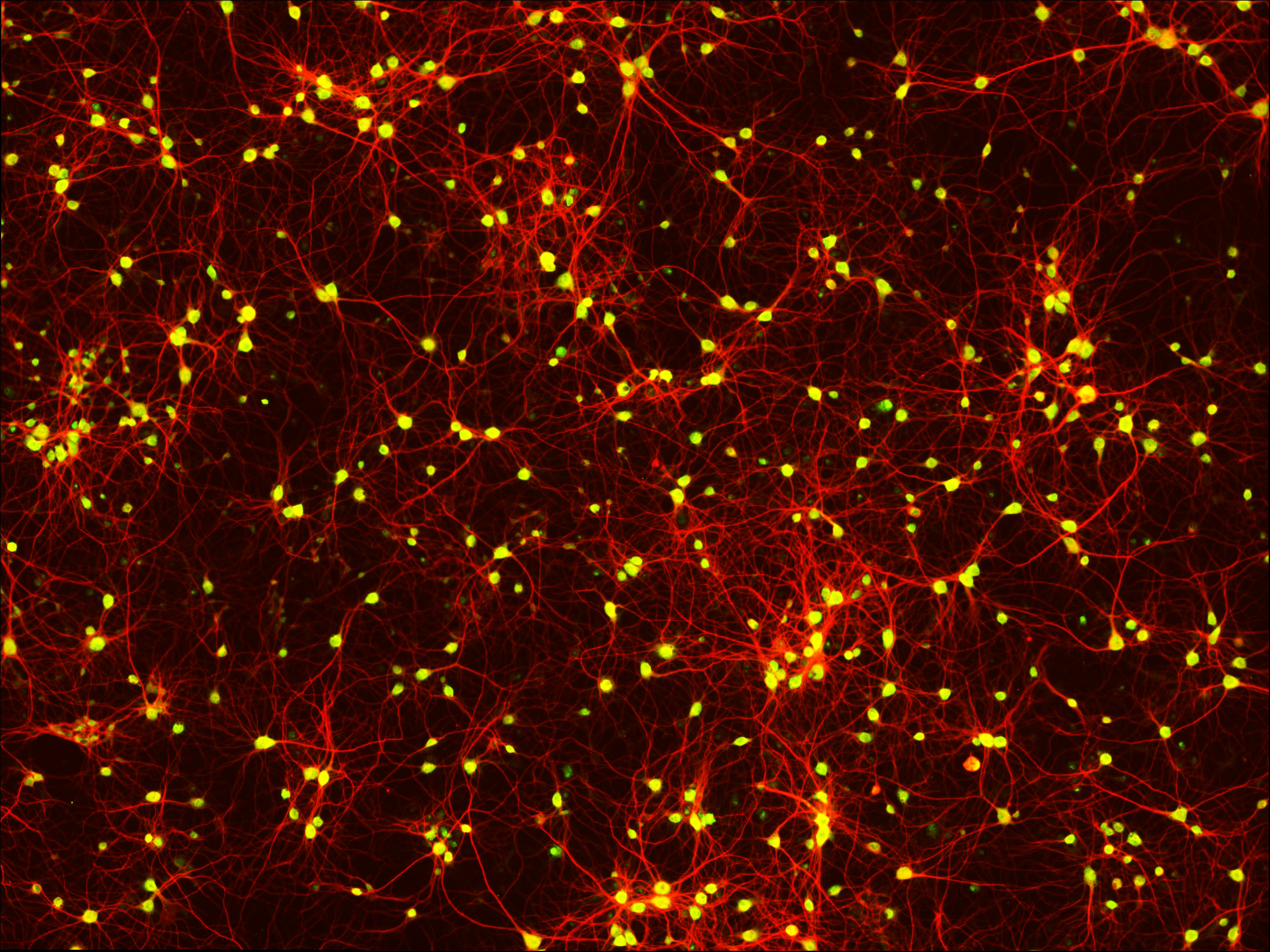 5 Primary neurons Map2 NeuN AOrr 2019.jpg