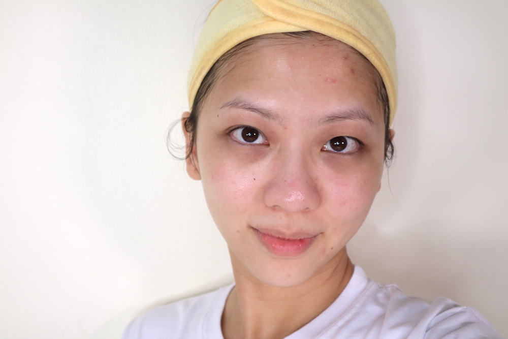 After; glassy and radiant skin omg can I have 1 order everyday pls T_T