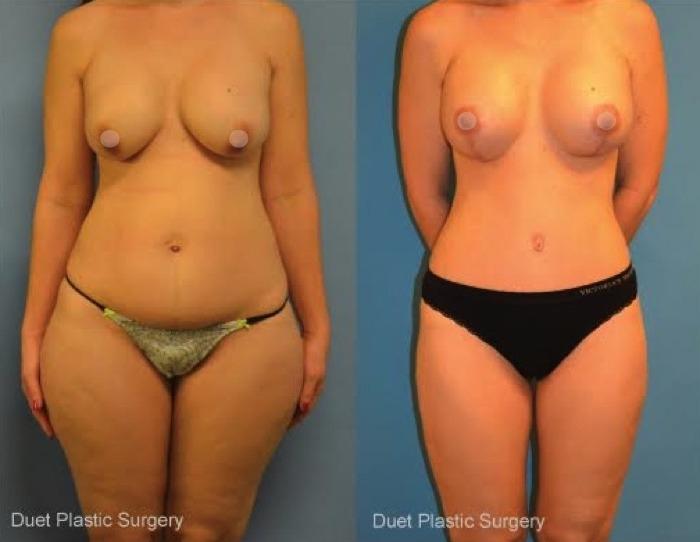 Photo by Duet Plastic Surgery