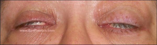 Photo from www.eyeplastics.com