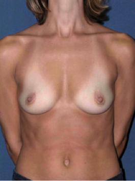 BEFORE https://www1.plasticsurgery.org/before_and_after_photo_gallery/case.aspx?id=4553