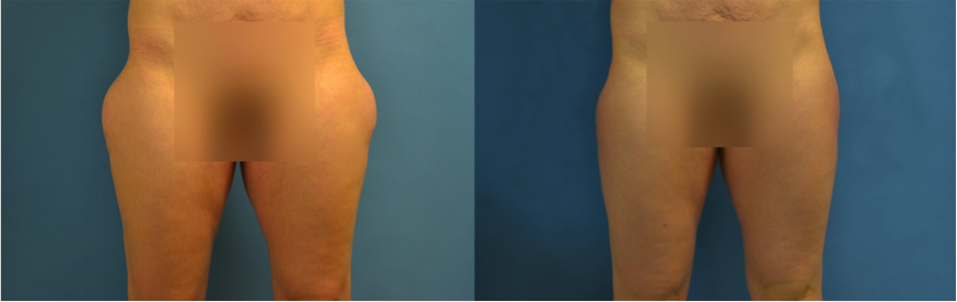 Before and after results for traditional surgical liposuction, courtesy of Dr. Lim/Duet Plastic Surgery