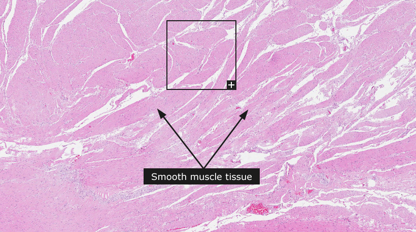smooth_muscle__1__example_1__overview 2.jpg
