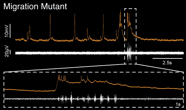 Whole cell recording from facial motor neuron (orange trace) during simultaneous recording of motor activity in the tail (white trace).