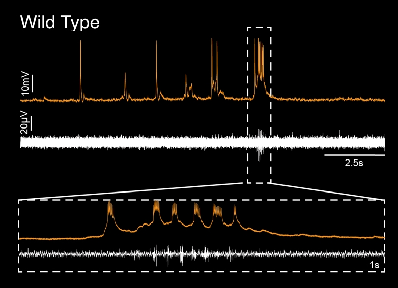 Whole cell recording from a facial motor neuron (orange trace) during simultaneous recording of motor activity in the tail (white trace).