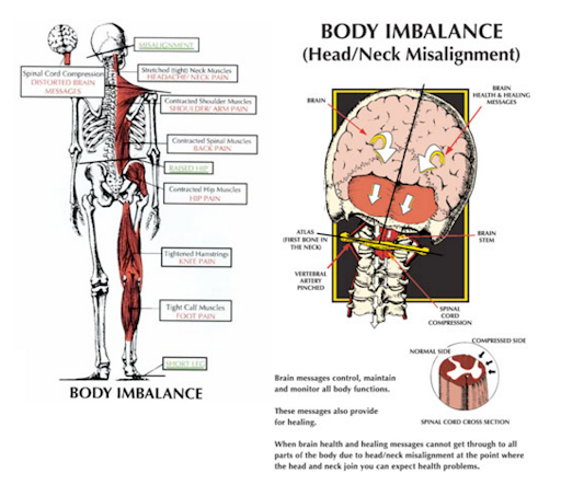 Body Imbalance.png