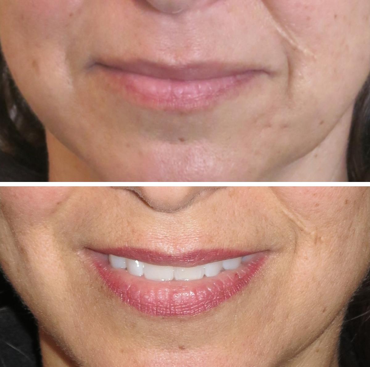 30 days healed before retouched blended lip liner