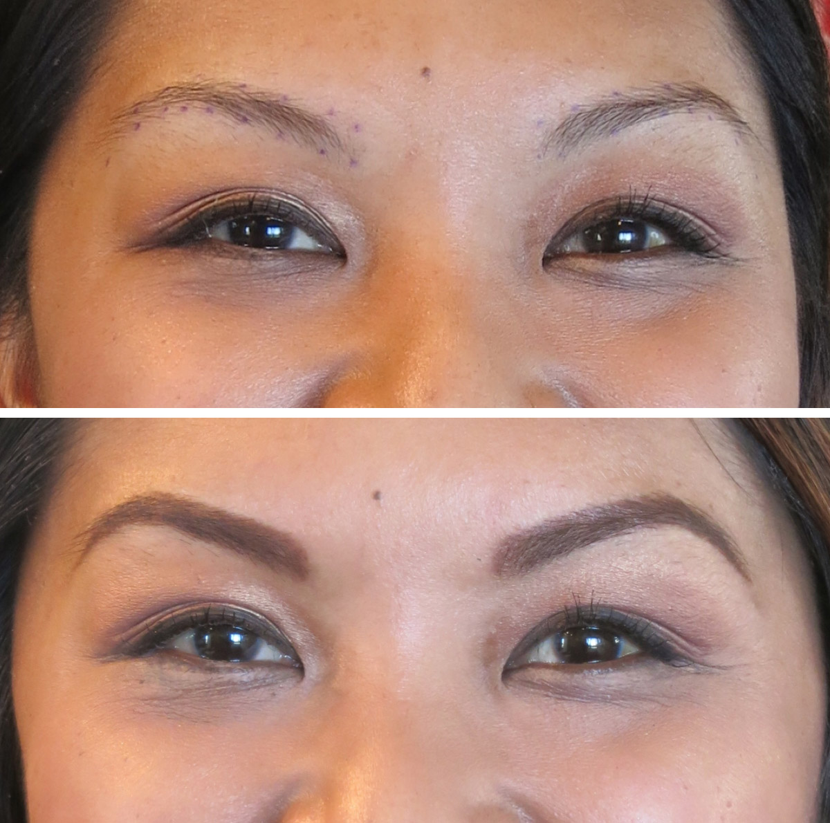 Before and 30 days healed before follow upBefore and 30 days healed before follow up