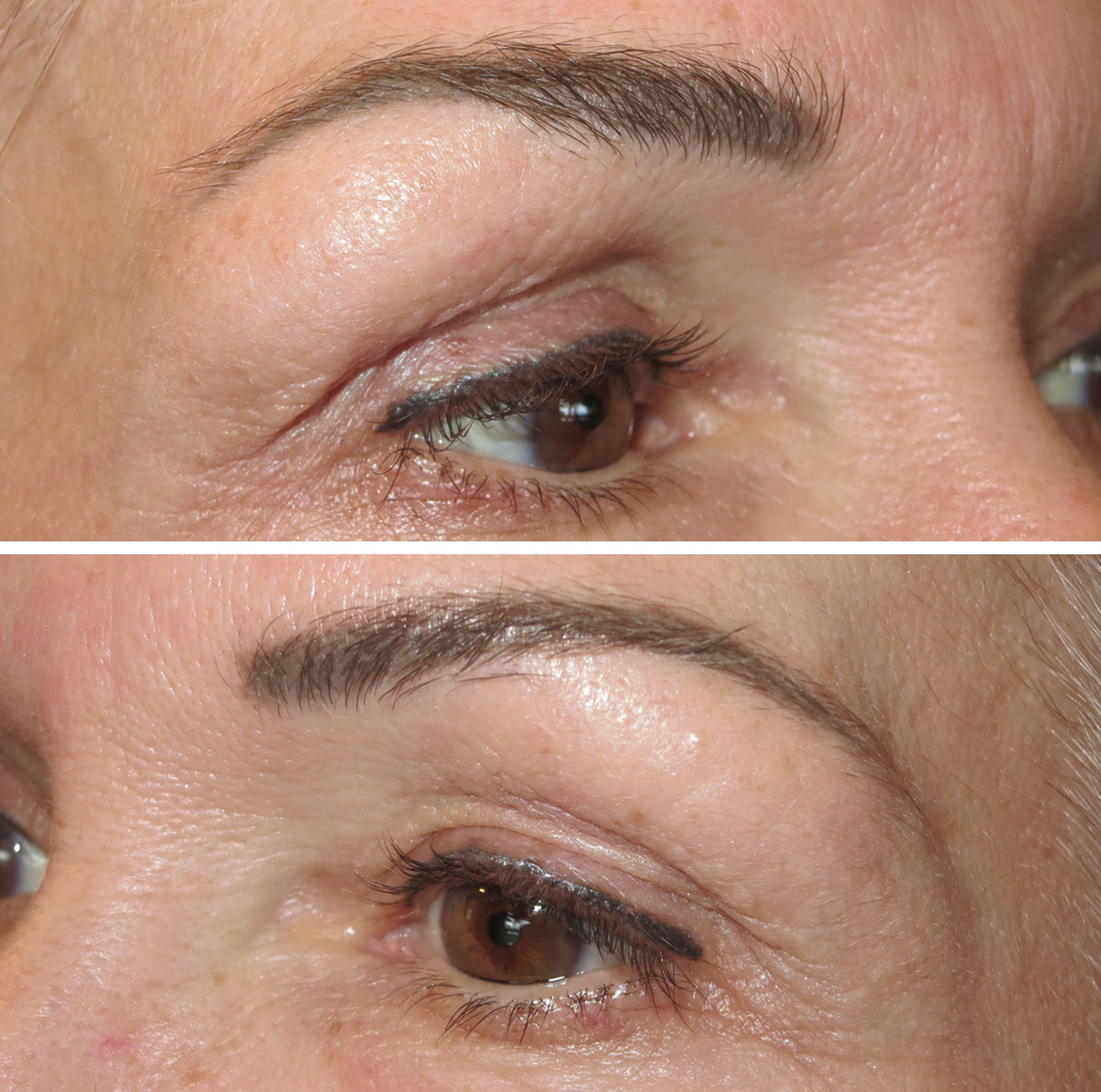 Powder fill and upper liner 30 days healed before follow up service