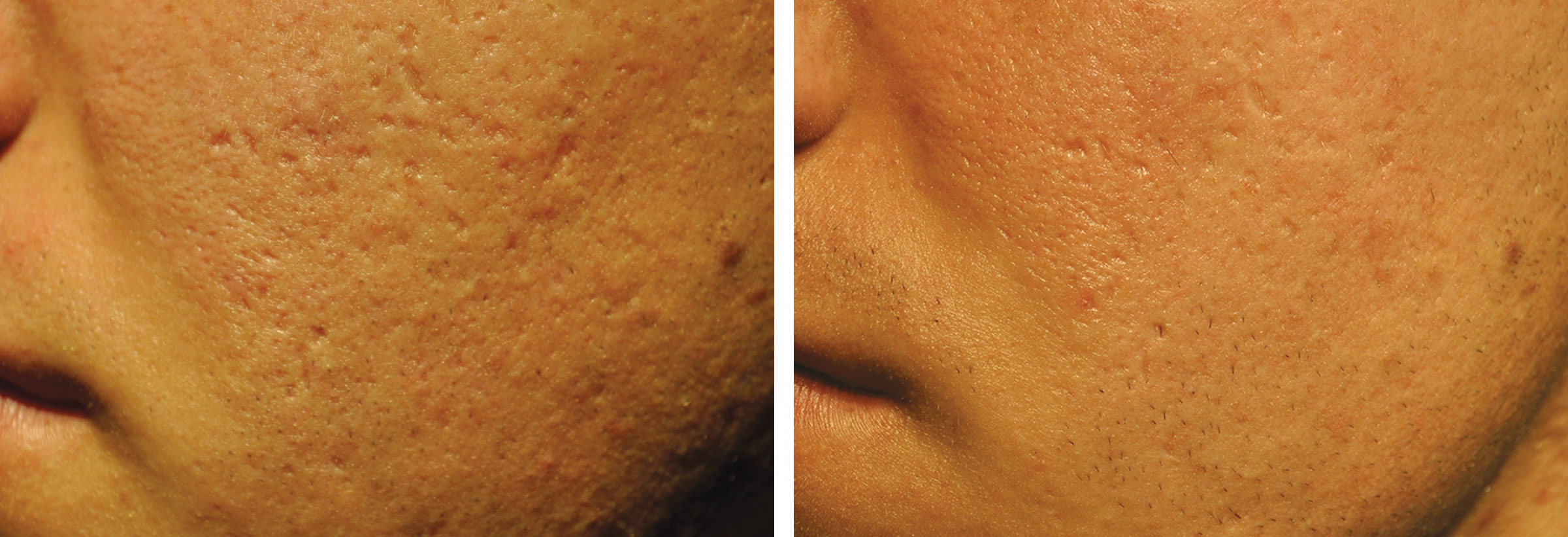 22 year-old male before and after 4 micro-needling treatments