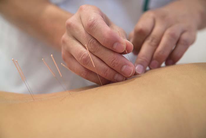 acupuncture-chinese-medicine.jpg