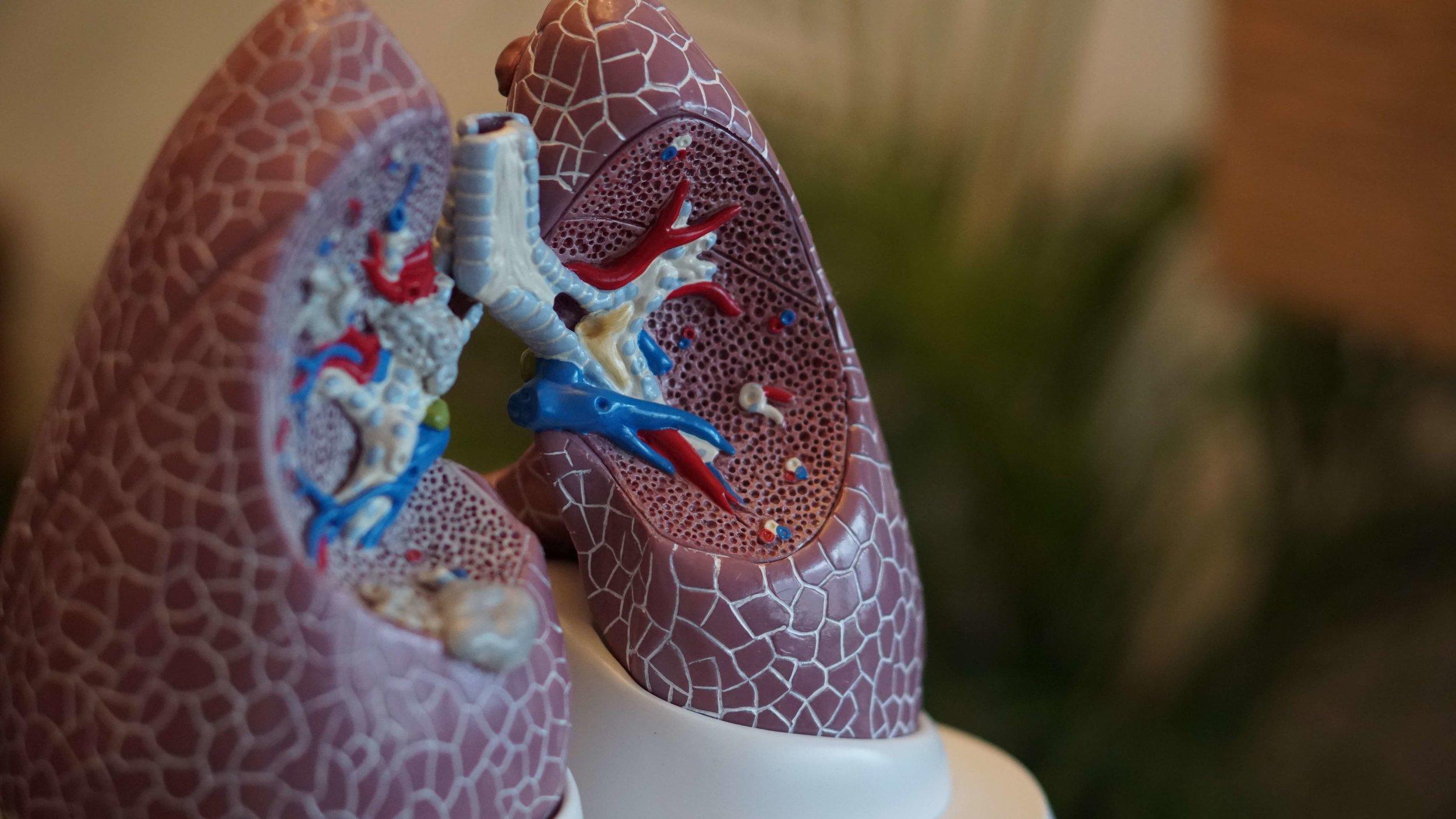 hht-pulmonary-vm.jpg