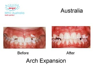 150-arch-Expansion-Australia-myomunchee.jpeg