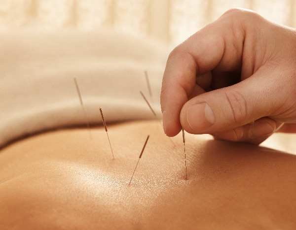 Acupuncture and Adrenal Fatigue.jpg