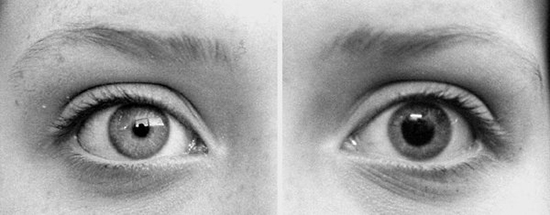 Dilated-Vs-Contracted-Pupils.jpg