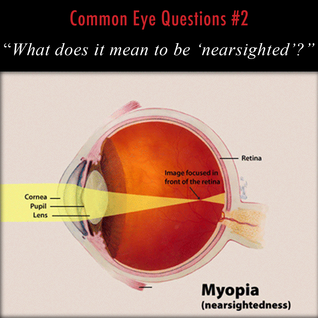 Anatomical diagram illustrating myopia, or nearsightedness
