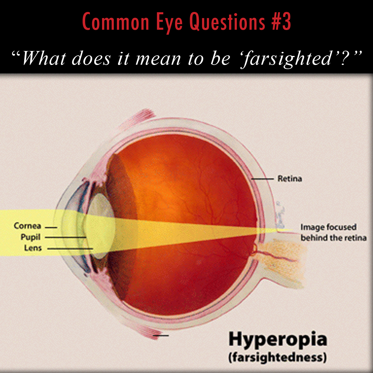 The anatomy of hyperopia, or farsightedness