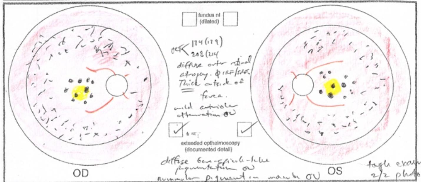 CRB1-associated Leber congenital amaurosis (LCA)