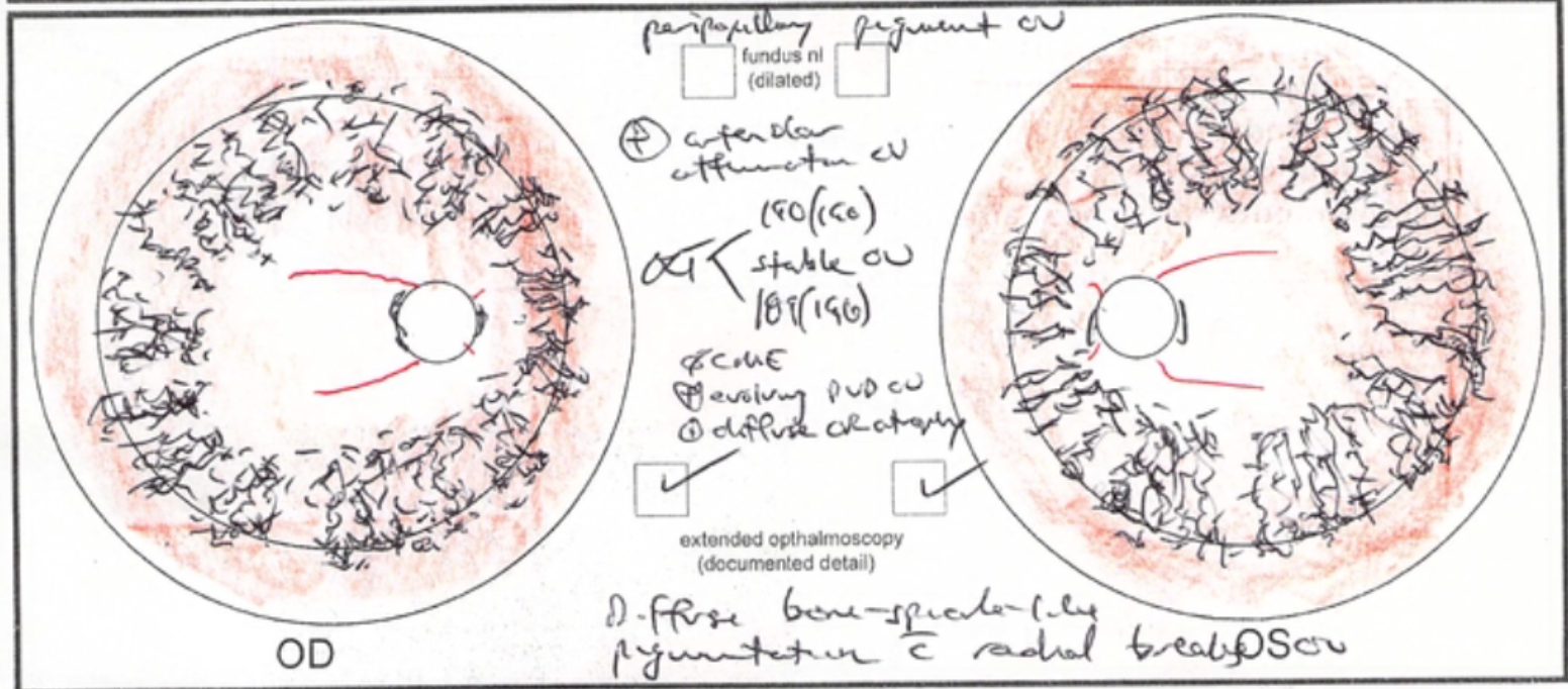 FLVCR-1 associated retinitis pigmentosa