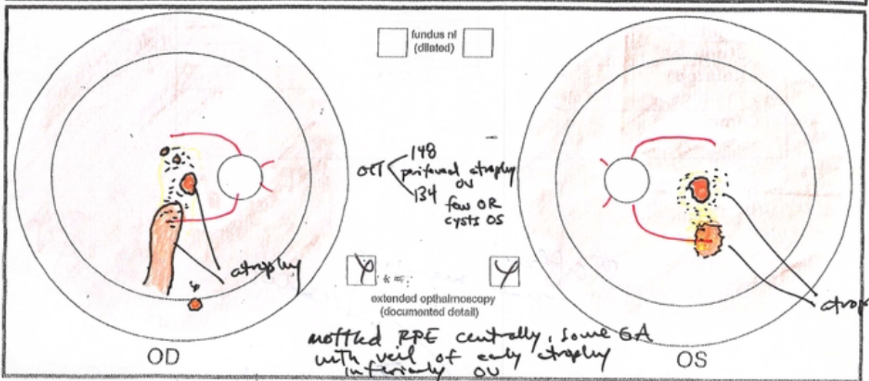Chronic central serous retinopathy (CSR)