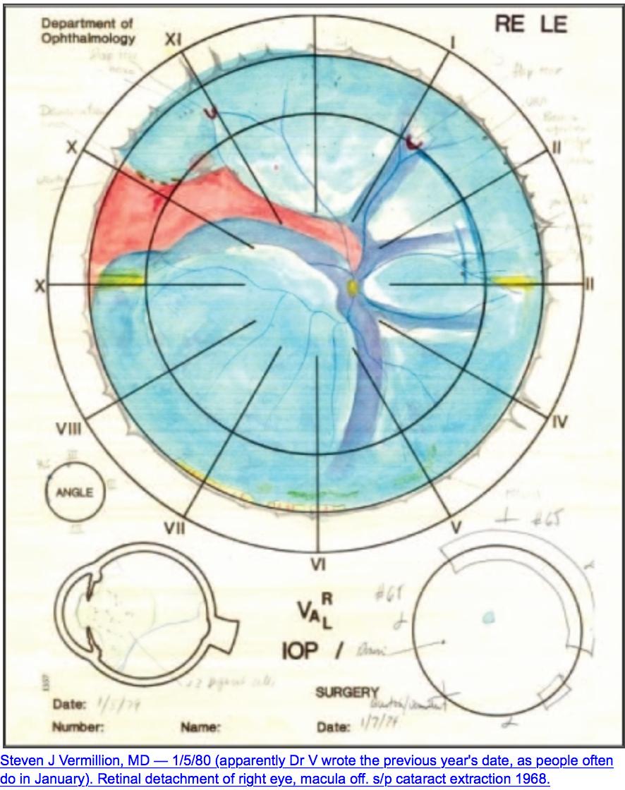 retinaldetachment