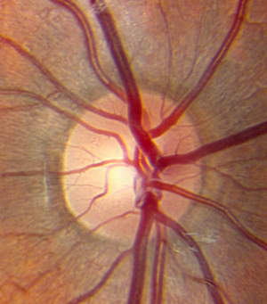 A healthy optic nerve. Image courtesy of  eyerounds.org .