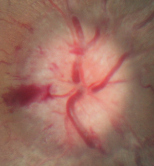 Optic disc edema. Image courtesy of  eyerounds.org .