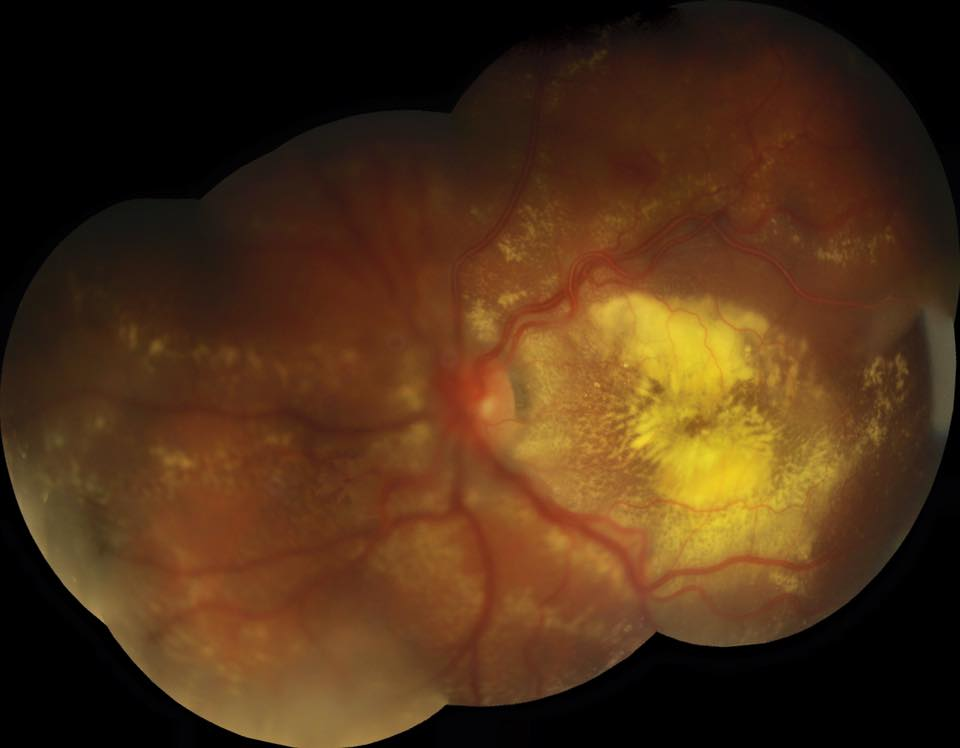 Montage fundus image taken with a Topcon camera